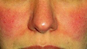 Зуд и покраснение кожи лица. ? Почему чешется лицо, краснеет и зудит шея: причины.