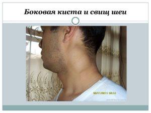 Кисты и свищи шеи боковые. Удаление боковых и срединных кист и свищей шеи