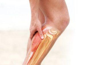 Сводит икру на ноге что делать быстро. Сводит ноги по ночам: лечение, причины