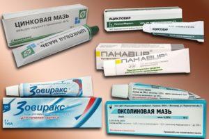 Как избавиться от малярии на губе: мази, таблетки и народные средства. Средства, применяемые для профилактики и лечения малярии