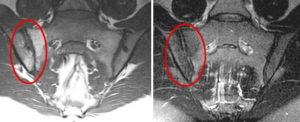 Мрт крестцово-подвздошных сочленений. МРТ крестцово-подвздошных сочленений – что это такое, как показывает сакроилеит Бехтерева При появлении воспаления в суставах нижних конечностей