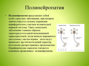 Полинейропатия: что это за болезнь и как ее лечить? Полинейропатия смешанного генеза что это такое Острая полинейропатия лечение и выздоровление