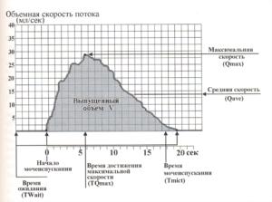 Результаты урофлоуметрии. Что такое урофлоуметрия: как и с какой целью она проводится? Расшифровка и примеры результатов