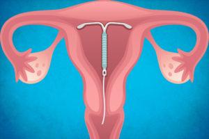 Внутриматочная спираль – все плюсы и минусы. Контрацепция. Внутриматочная спираль (ВМС)