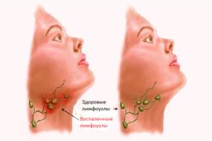 После ангины воспалились лимфоузлы на шее чем лечить. Воспаление лимфоузлов во время ангины
