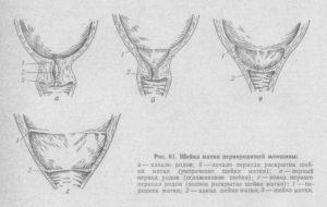 Как раскрывают шейку матки вручную. Народные средства для раскрытия шейки матки перед родами