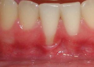 Зуб чувствует холодное. Зуб реагирует на горячее