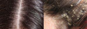 Советы о том, чем и как увлажнить кожу головы в домашних условиях. Сухая кожа головы