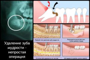 Удалили зуб температура 38 что делать. Удаление зуба: суть операции, показания и противопоказания. Что можно сделать самостоятельно