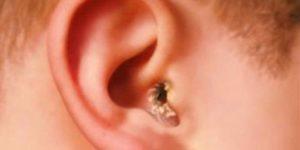 Бежит из уха у ребенка: что делать, если вытекает желтая жидкость. Из уха течет желтая жидкость: о чем говорит симптом
