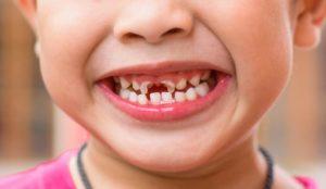 Детская зубная боль. Нужно ли лечить молочные зубы у детей. Лечить или ждать, когда выпадут — нужно ли лечить молочные зубы
