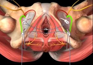 Как сузить мышцы матки. Зачем и кому нужна операция по уменьшению влагалища