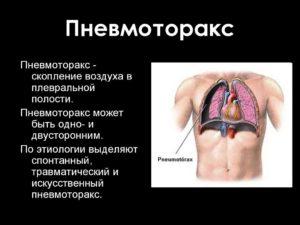 Последствия после пневмоторакса. Пневмоторакс: что это такое? Причины, симптомы и лечение пневмоторакса