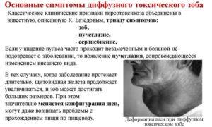 Тиреотоксикоз – симптомы и причины патологического процесса. Причины возникновения симптома грефе при тиреотоксикозе