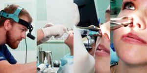 Радиоволновая редукция носовых раковин послеоперационный период. Коагуляция носовых раковин. Клинические признаки и симптомы вазомоторного ринита