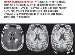 Диффузная церебральная атрофия. Как проявляется гипотрофия мозга