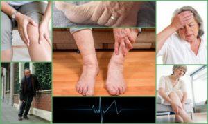 Старческая немощь лечение народными средствами. Мышечная слабость у пожилых людей. Мышечная слабость – слабость в ногах, как симптом