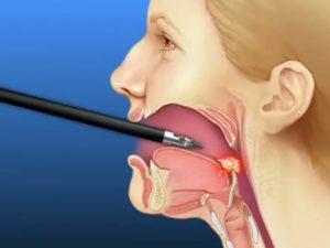 Может ли образоваться в горле киста. Почему в горле появляется киста? Диагностика и лечение