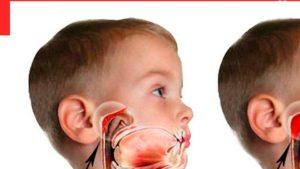 Аденоиды и ночное апноэ. Как облегчить дыхание при аденоидах ребенку