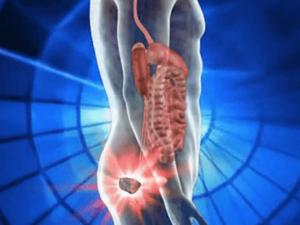 Тянущая боль в заднем проходе у женщин. Все про боль внизу живота и в прямой кишке