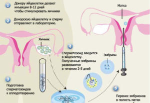 Есть ли у парней смазка. Есть ли сперматозоиды в мужской смазке и можно ли таким образом забеременеть. Вероятность оплодотворения куперовой жидкостью после родов