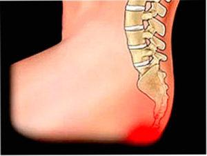 Симптомы, последствия и лечение смещения копчика после травм