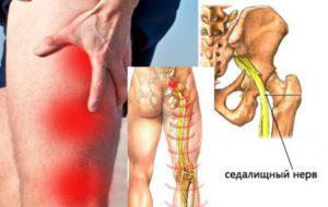 Защемление нерва в колене симптомы как лечить. Защемило колено - что делать, не могу разогнуть, согнуть