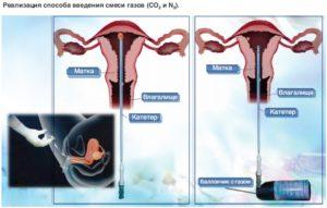 Как правильно производить вагинальное спринцевание? Радонотерапия. Гинекологические орошения