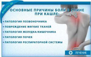 При кашле болит спина: отдает в область лопаток и поясницу. Кашель отдает в спину