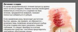 Лечение ссадин народными средствами. Как правильно лечить ссадины на лице