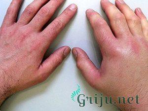 Сколько держится отек после перелома руки и как его можно убрать. Как снять отек после перелома и после снятия гипса