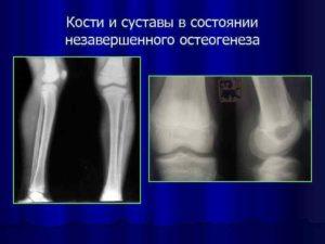 Частые заболевания костей и суставов. Разрушение костей болезнь название