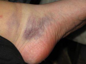 Уплотнение на ноге после ушиба. Что делать, если после ушиба образовалось уплотнение