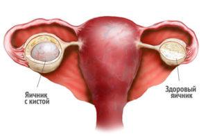 Ретенционное образование правого и левого яичника. Что такое ретенционное образование левого или правого яичника