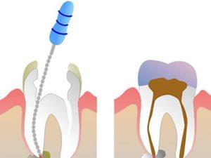 Убить зубной нерв йодом отзывы. Как и чем убить зубной нерв в домашних условиях. Можно ли убить нерв в зубе мудрости