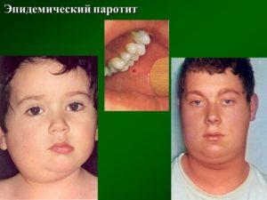 Заболевание паротит у взрослых. Симптомы и лечение паротита у детей Острый серозный паротит