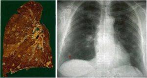 Могут ли исчезнуть метастазы после химиотерапии. Методы лечения метастаз в легких