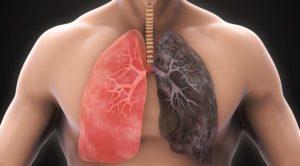 Как очистить лёгкие от пыли? Как-будто пыль в легких. Как очистить легкие от пыли: эффективные способы в домашних условиях