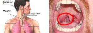 Как отличить тонзиллит от рака горла. Первые признаки рака горла