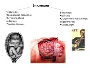 Известные люди с эпилепсией. Великие люди-эпилептики. Диагностически важная особенность рисования у эпилептиков. Причины возникновения болезни