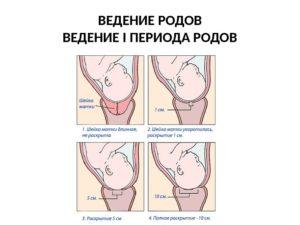 Как происходит раскрытие шейки матки у повторнородящих. Период раскрытия шейки матки - латентная фаза. Преждевременное начало процесса