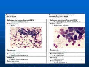 Цитологическая диагностика молочная железа строение молочной железы. Пункция молочной железы Оксифильные массы