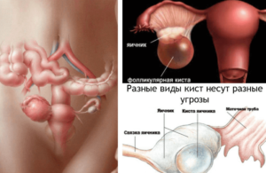 Кистозная дегенерация яичников лечение. Кистозно-измененные яичники. Кистозное изменение левого яичника