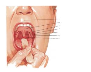 Болит верхнее небо во рту больно глотать. Основные лекарственные средства. Симптоматика, связанная с болезненностью нёба, способы её устранения