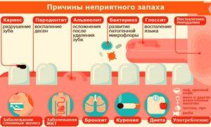 О чем говорит состояние, когда дурно пахнет изо рта у ребенка? Запах изо рта после удаления аденоидов: причины, лечение