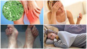 Какие инфекции вызывают воспаление суставов. Инфекционный артрит