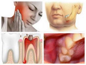 Что делать, когда болят зубы при простуде. Почему при простуде, во время гриппа и орви болят зубы и воспаляются десны, как лечить полость рта