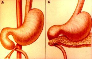 Аберрантная поджелудочная железа, ее лечение. Добавочная или аберрантная поджелудочная железа