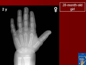 Как определить костный возраст по рентгену кисти. Определение возраста по костям