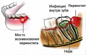 Воспаление надкостницы зуба лечение народными средствами. Чем опасно воспаление надкостницы зуба и методы его лечения
